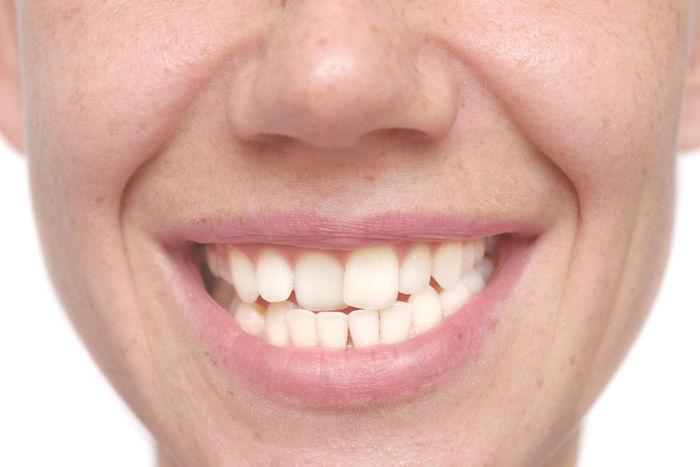 Crooked Teeth Dreams